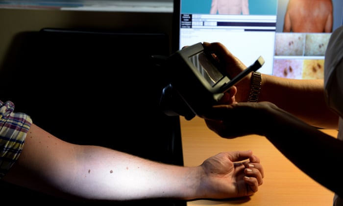 Australians' skin cancer checks being performed by untrained