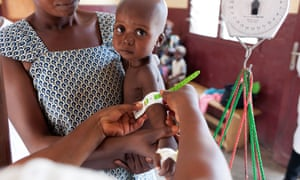 A child is measured to check for levels of malnutrition in Central African Republic