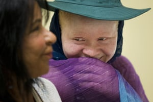 Kabula Nkarango Masanja, 17, smiles with Elissa Montanti, founder and director of the Global Medical Relief Fund, during a prosthetic limb fitting at Shriners Hospital