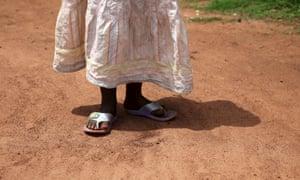 A three-year-old girl Uganda