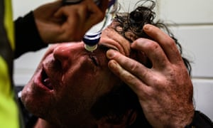 A protestor is treated for the effects of pepper spray.