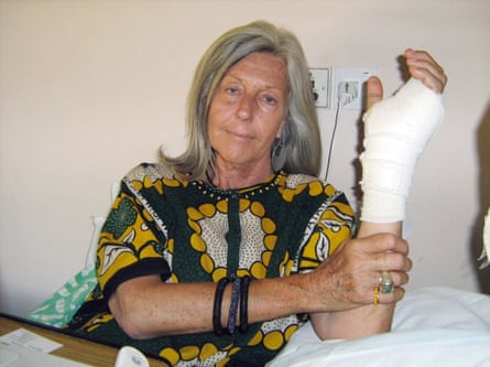 Hard breaks: Gallmann holds her arm after her hadn was crushed by illegal grazers in 2009.