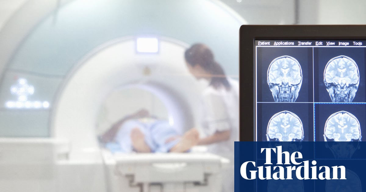 NHS England hospitals having to rely on 'obsolete' imaging equipment