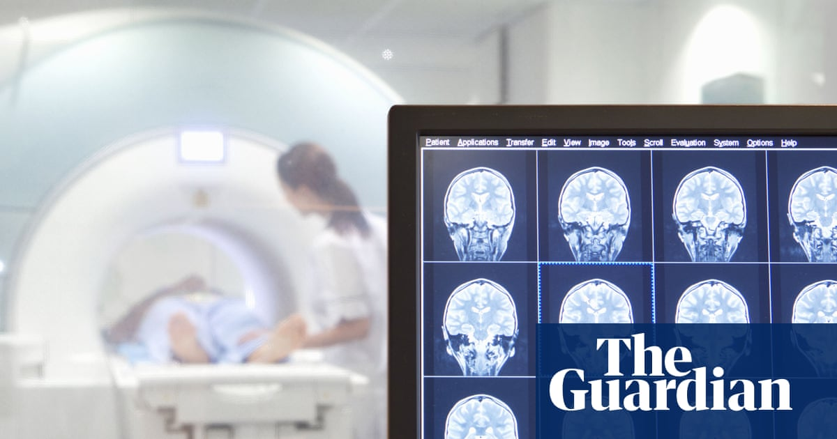 Success Of Blood Test For Autism >> Autism Diagnosis By Brain Scan It S Time For A Reality Check