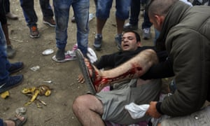 An injured migrant lies on the ground after a clash with Macedonian police near Idomeni, northern Greece