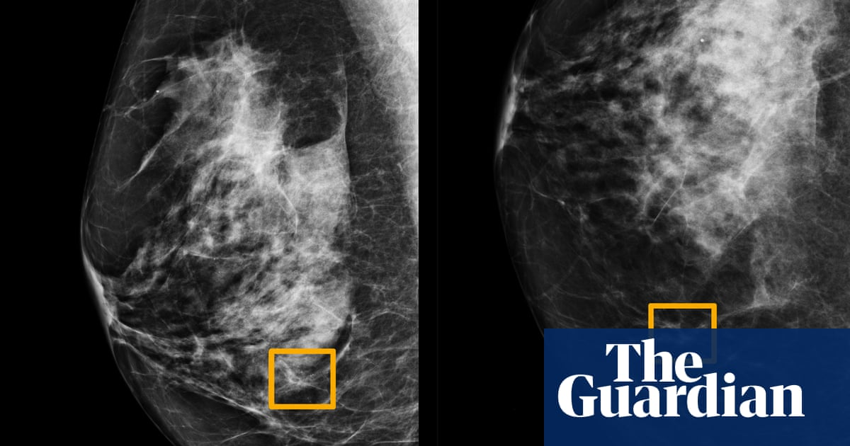 AI system outperforms experts in spotting breast cancer