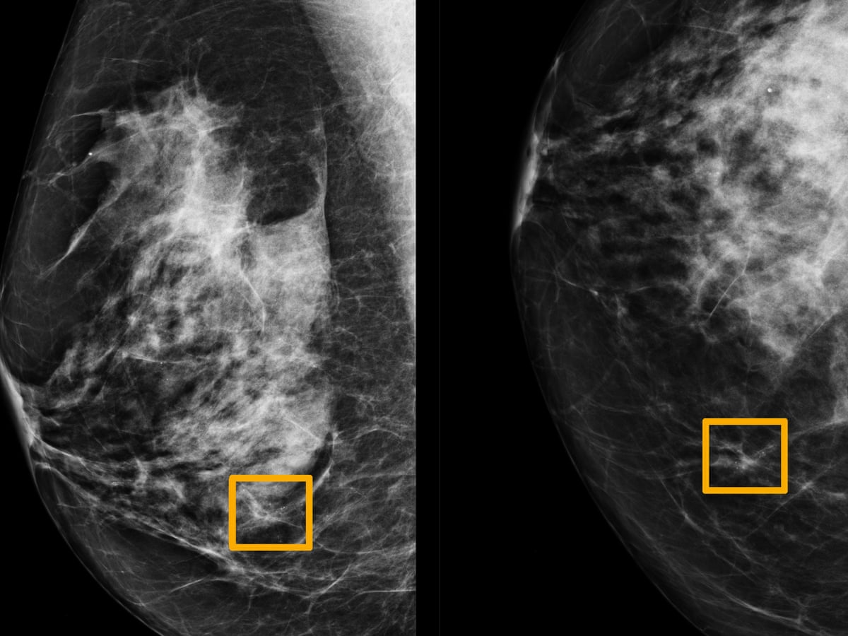 Ai System Outperforms Experts In Spotting Breast Cancer Society