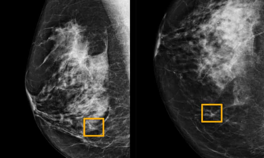 A yellow box indicates where an AI system found cancer hiding inside breast tissue. Six previous radiologists failed to find the cancer in routine mammograms.