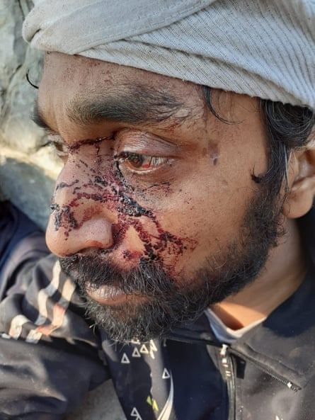One of the migrants attacked by men wearing balaclavas
