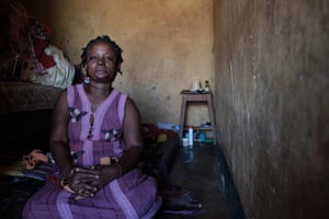 Namudu Madina, who was attacked by her husband with acid, poses for a portrait at her home in the outskirts of Kampala.