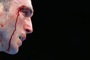Blood trickles down the face of Romania's Mihai Nistor during his super heavyweight bout against Hussein Iashaish of Jordan.