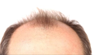 Patients at hair clinic chain Ashley & Martin between June 2014 and July 2017 were committed to paying thousands of dollars for anti-baldness treatments with 'unfair' cancellation policies, the federal court ruled.