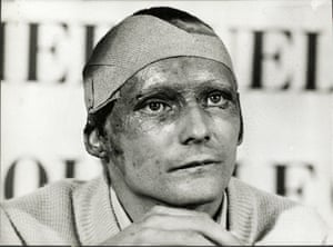 Lauda required a skin graft operation and had to have his eyelids reconstructed. Yet he only missed two races before returning to action at the Italian GP, such was his desperation to win the world title in the face of pressure from long-term rival James Hunt. Hunt would ultimately win two of the final four races to pip Lauda to the title by one point.