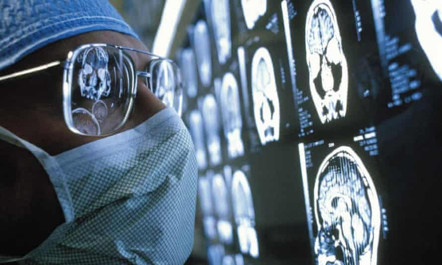 A scientist looking at brain scans.