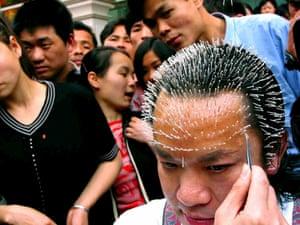 Wei Shengchu, an acupuncture doctor