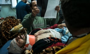Casualties are treated in Erbil following a car bomb attack in Mosul.