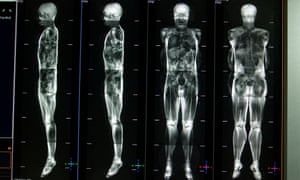 An MRI scan image shows the distribtuion of fat within a person's body