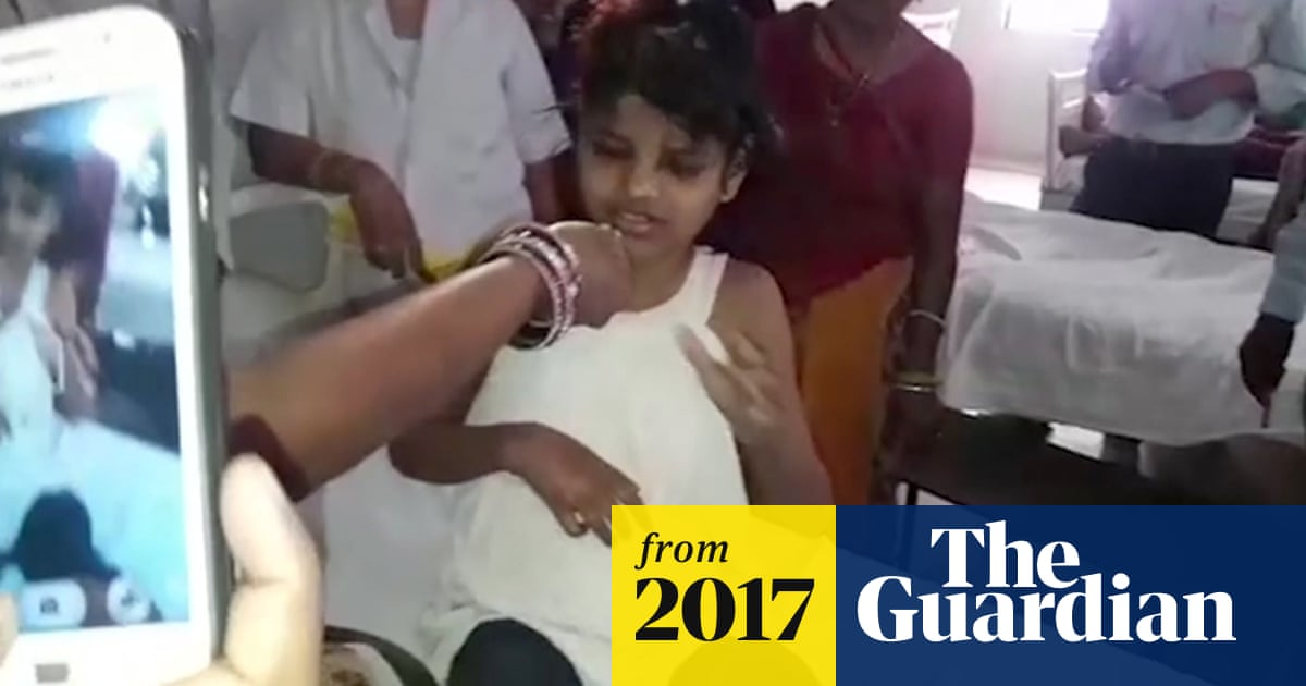 Indian girl found in jungle was not living with monkeys, officials