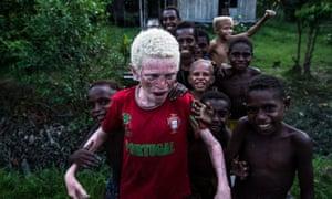 Asmat albino