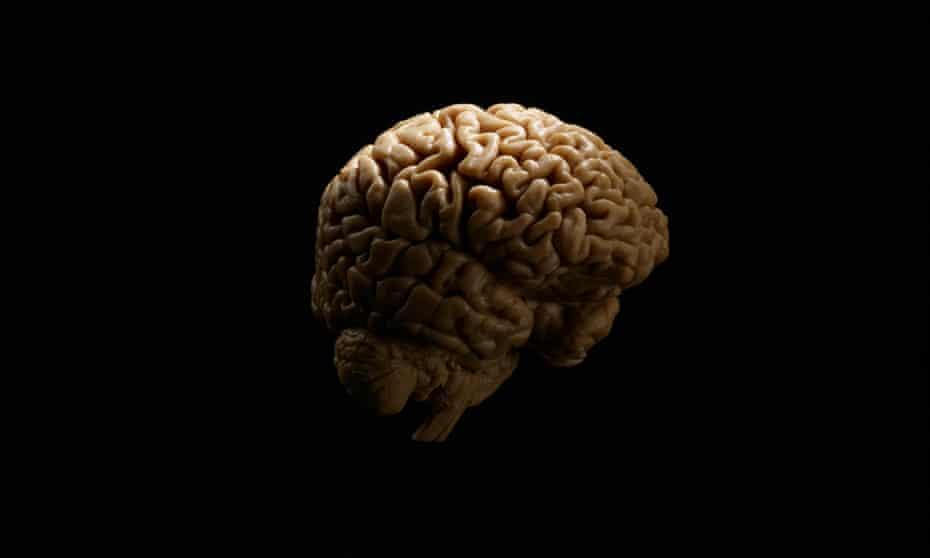 The human brain is immediately recognizable by its prominent and highly convoluted cerebral cortex.