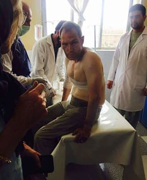 A foreign tourist, wounded during a Taliban militant attack, is treated at hospital.