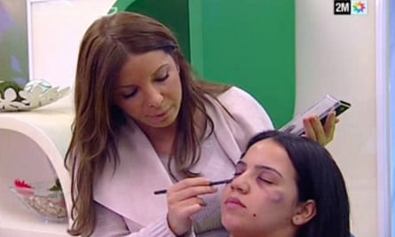 Moroccan TV Channel 2M, which used makeup to create the impression of real bruises, enraged many viewers.