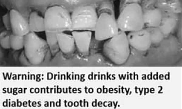 Health warning with rotten teeth image for sugary drink study
