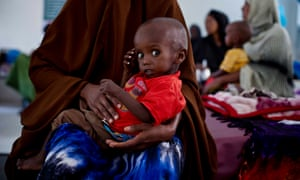 Eid Abdi Muhammed, 18 months old, in the stabilisation ward for severely malnourished children in Hargeisa, Somaliland
