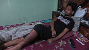Rafiq lying in bed at home in the Kardampuri locality of Delhi. The young Muslim tailor was beaten by some policemen when they turned violent against protesters in the last week of February.
