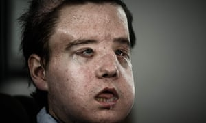 french man becomes first person to have two face transplants world