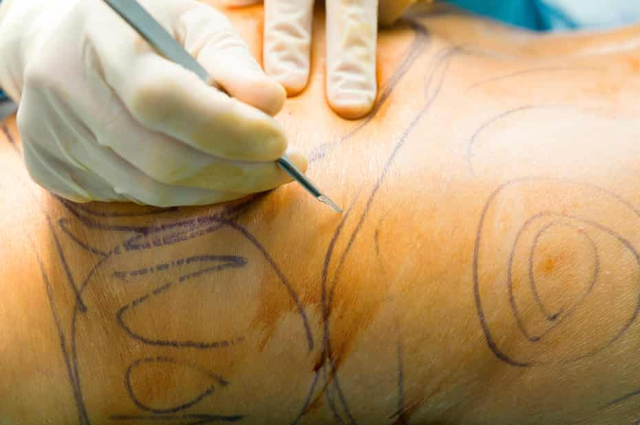 A patient being marked before a liposuction procedure.