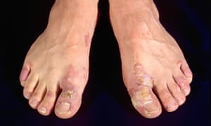 The feet of a person suffering from impetigo.