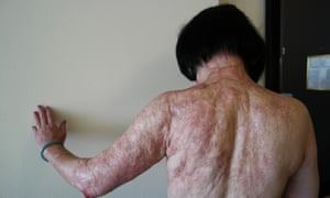 Kim Phuc shows the burn scars on her back and arms after laser treatments.