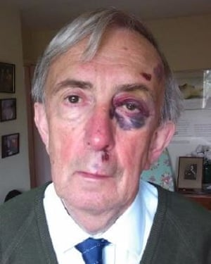 Farquhar with facial injuries sustained in a fall after he was drugged by Field.