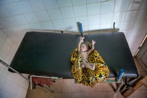 Baby Odou awaiting check-up in Benin
