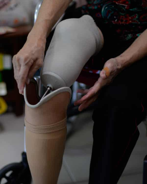 Kuan Ying's prosthetic leg is a result of her acute diabetes.