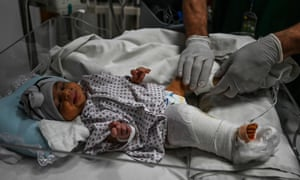 A newborn baby, Bibi Amena, is treated for a gunshot wound to her leg after being rescued from the maternity hospital attack that killed her mother.