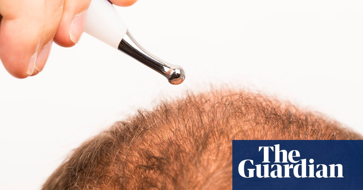 Tell us: have you had a hair transplant during the pandemic?