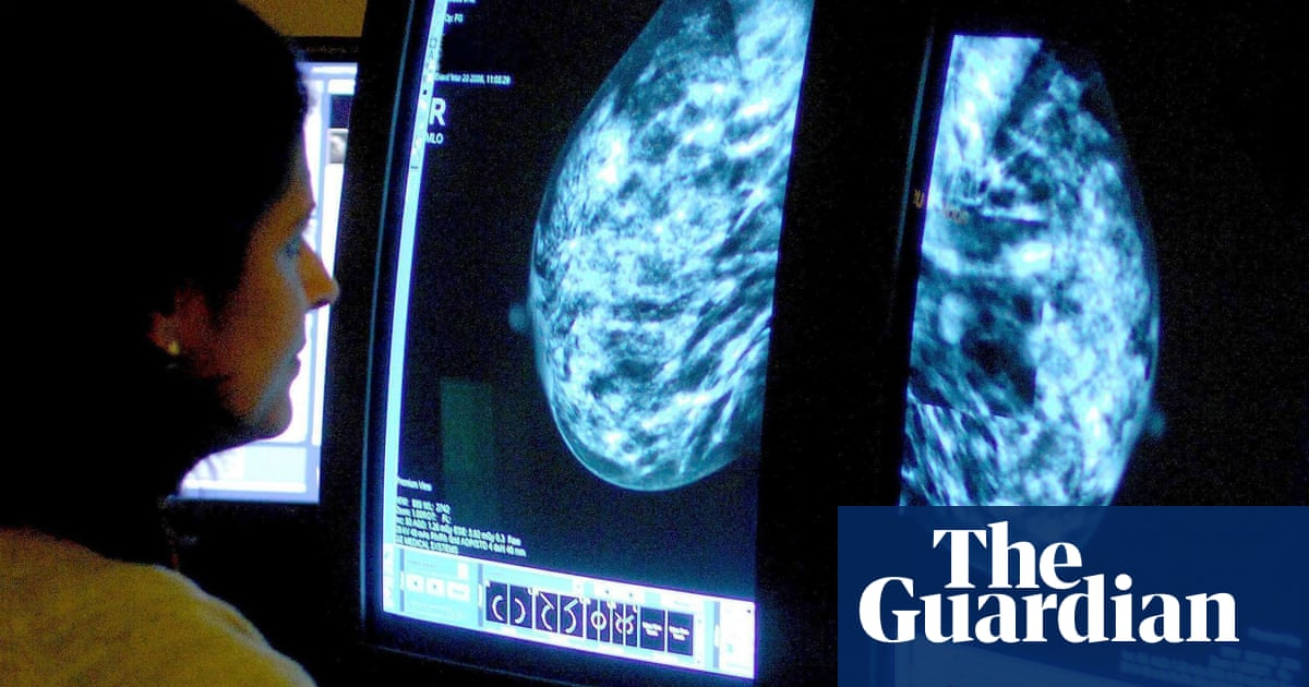 Breast cancer drug approved for NHS after maker agrees discount