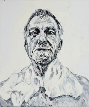 Treatment, Day 49 (Sorbolene Soak) self-portrait by Nicholas Harding