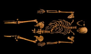 Scoliosis … the skeleton of Richard III, discovered in Leicester.