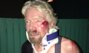 An injured Richard Branson after his accident