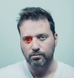 """I get called 'glasshole'"": Rob Spence"
