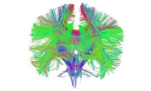 Brain white matter scan