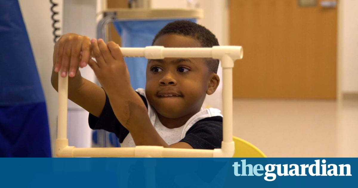First Double Hand Transplant Involving A Child Declared A Success - Heres what success kid looks like now hes all grown up