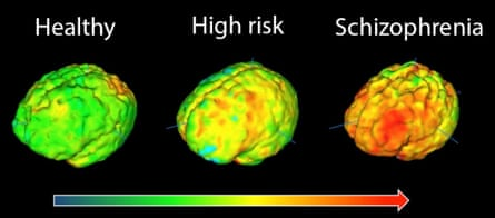 Brain images showing elevation in microglial activity in orange/red. The highest levels in schizophrenia are in the frontal cortex, involved in planning and regulating brain function, and the temporal cortex, involved in processing sounds and voices.
