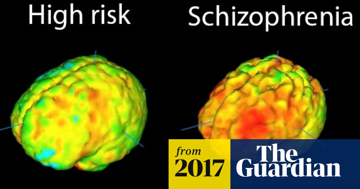 Radical new approach to schizophrenia treatment begins trial