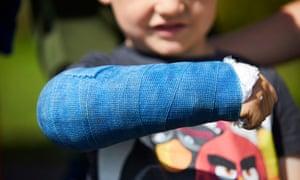 Showing off a broken arm