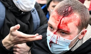 An injured man is helped by other protesters during a rally in Moscow