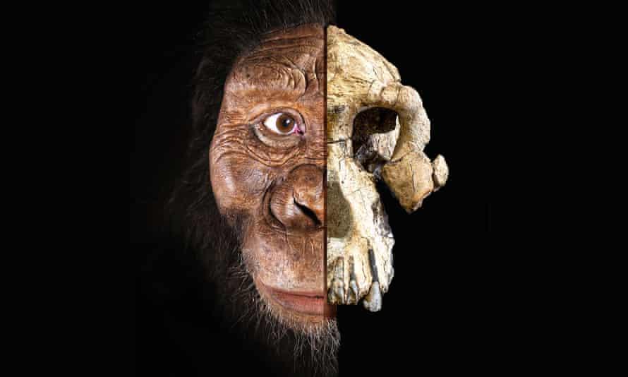 A partial facial reconstruction